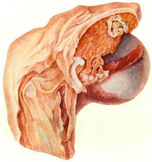 Туберкулезный коксит в начальной стадии