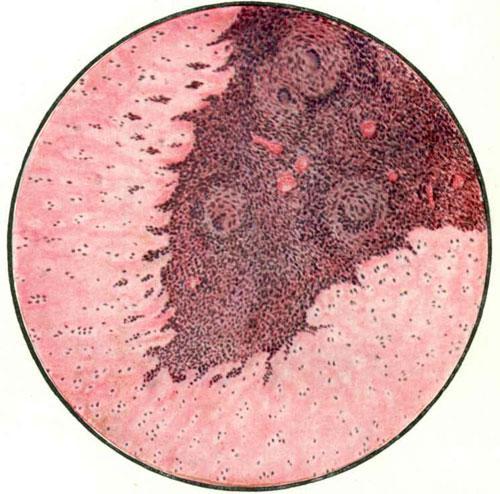 Врастание специфической грануляционной ткани из костного очага в суставной хрящ