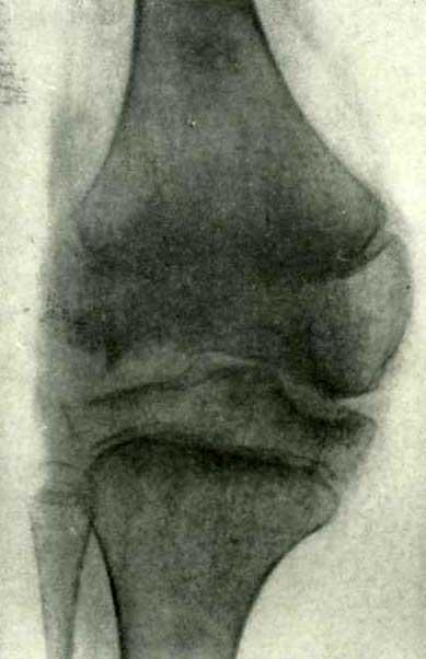 Рентгенограмма той же больной после 6 месяцев лечения в санатории имени Боброва в Алупке