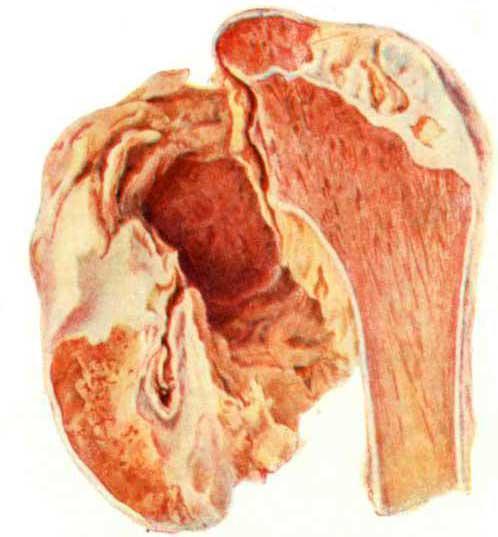 Деструкция при старом туберкулезном коксите: полное разрушение головки и шейки бедренной кости