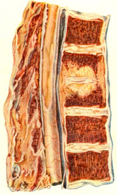 Чрездисковый путь распространения туберкулезного процесса и позвоночнике