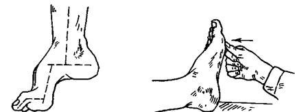 керосин от глистов отзывы врачей