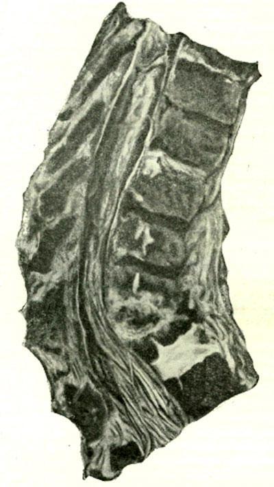 Восходящая отслойка передней продольной связки с разрушением межпозвоночных дисков при свищевом грудопоясничном спондилите