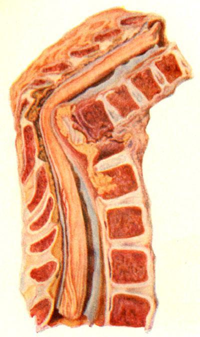 Разрушение трех грудных позвонков с искривлением и смещением верхнего сегмента кзади