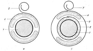Схема наложения циркулярной гипсовой повязки