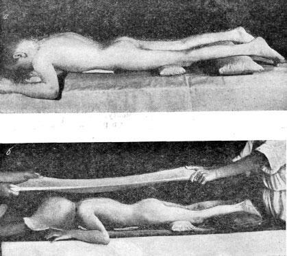 Наложение гипсовой кроватки при спондилите