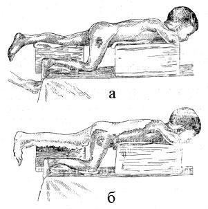 Изготовление мостовидной гипсовой кроватки