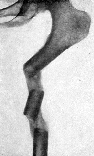 Удлинение конечности при помощи сегментарной остеотомии по Богоразу (О. М. Векслер)