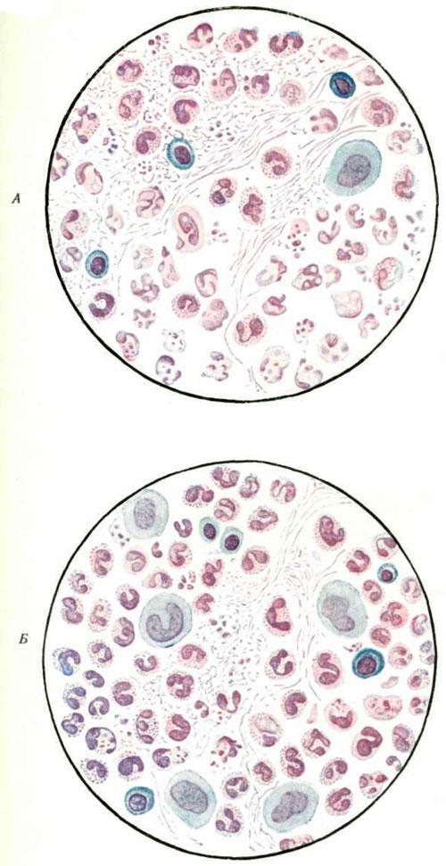 Цитология инфицированного гноя при свищах