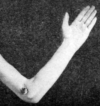 Одиночный свищ при туберкулезе локтя