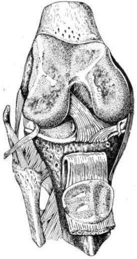 Суставные концы костей коленного сустава; покровные хрящи