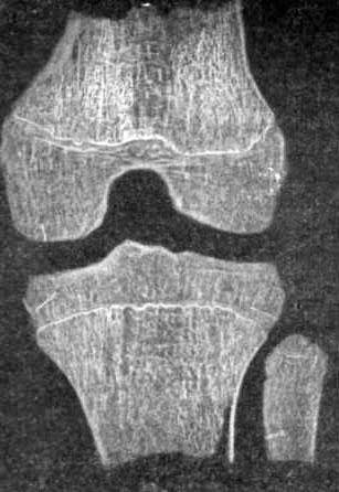 Структура костей коленного сустава
