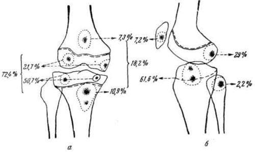 Схема частоты расположения первичных туберкулезных очагов в различных отделах костей, образующих коленный сустав (из работы Д. К. Хохлова)