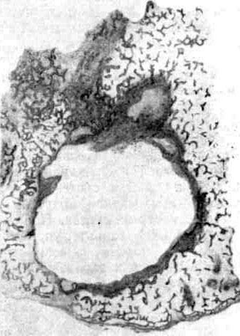 Изолированный очаг — костная каверна с двухслойной оболочкой и распространение процесса по кости в виде экспансивного разрастания гранулемы (фото с зарисовки гистотопографического среза резекционного препарата)