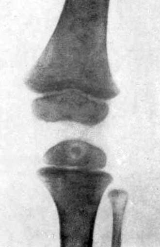 Первичный изолированный остит эпифиза большеберцовой кости