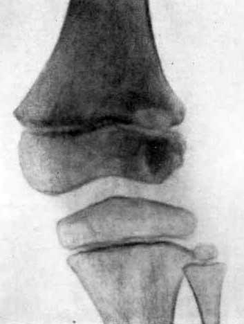 Первичный остит нижнего эпифиза бедренной кости