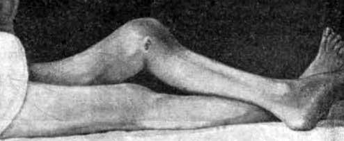 Ревматоидный Артрит Стилла