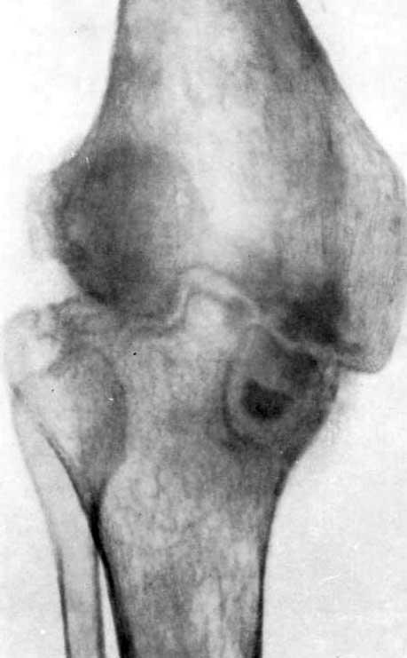 Метатуберкулезный остеоартроз