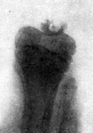 Рентгенологическое исследование коленной чашечки