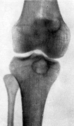 Гигантоклеточная опухоль верхнего конца большеберцовой кости, доказанная оперативным путем
