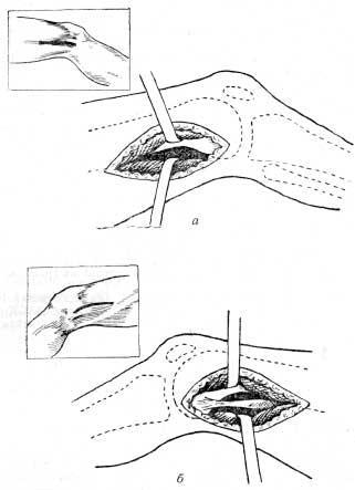 Доступы к эпиметафизарным очагам бедренной кости