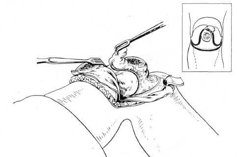 Проведение направляющих разрезов по линии внесуставных опилов бедра и голени