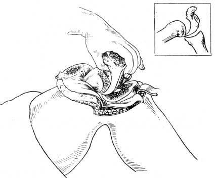Удаление выпиленного препарата целиком вместе с заворотами без вскрытия сустава