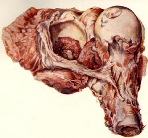 Туберкулезная гранулема дна вертлужной впадины