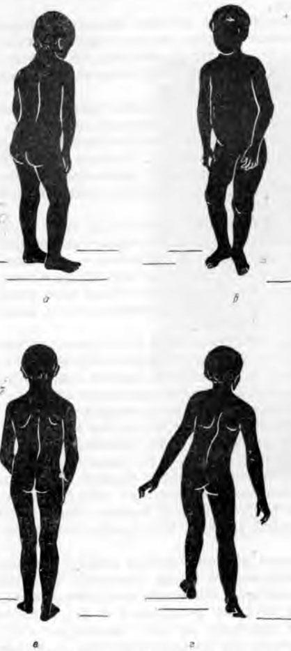 Ранние признаки туберкулезного коксита