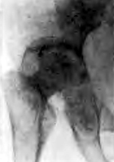 Прогрессирующая деструкция костей, образующих тазобедренный сустав