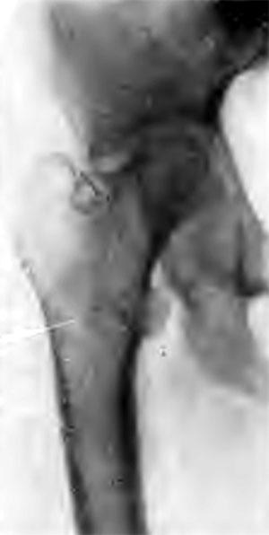 Репарация при благоприятном течении коксита. Больная А., 25 лет