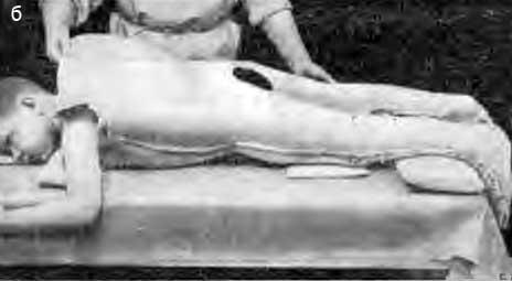 Изготовление большой двойной гипсовой кроватки с захватом надплечий, обеих конечностей со стопами и двойным креплением (б)