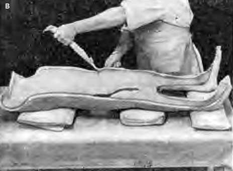 Изготовление большой двойной гипсовой кроватки с захватом надплечий, обеих конечностей со стопами и двойным креплением (в)