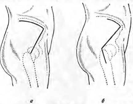 Верхненаружные разрезы для доступа к тазобедренному суставу