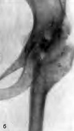Артродез с остеомой. Больная К., 12 лет (б)
