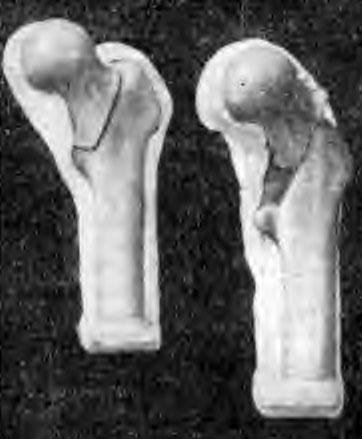 Косая межвертельная остеотомия по Филимонову