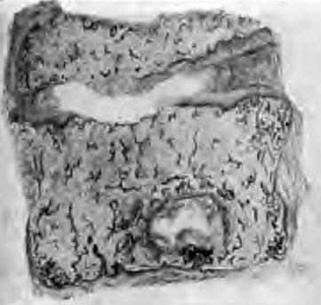 Первичный остит тела позвонка и вторичный дисцит (фото с рисунка из работы Л. П. Кононович)