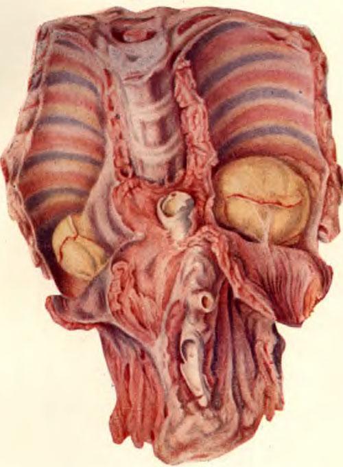 Паравертебральные натечные абсцессы над диафрагмой в виде «ласточкиных гнезд» при поражении грудо-поясничного отдела позвоночника