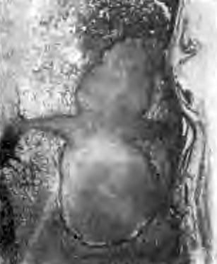 Чрездисковый путь распространения туберкулезного процесса Больной П., 21 года