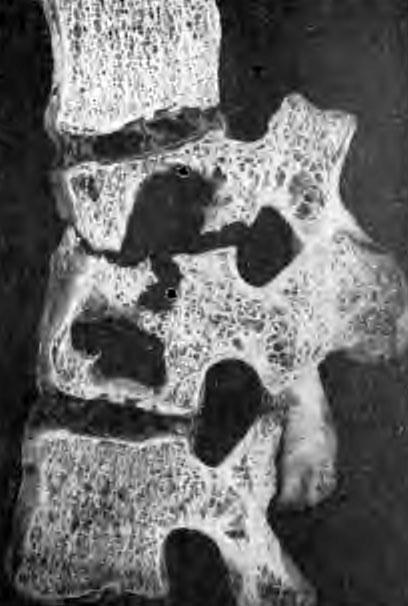 Большие кавернозные разрушения в телах двух смежных позвонков у взрослого; спадение их без искривления линии позвоночника