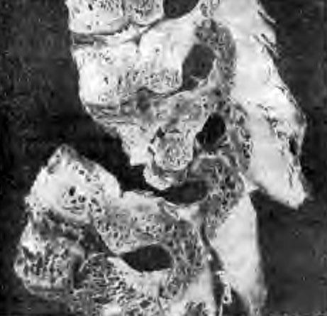 Репарация в остатках разрушенных и соседних сохранившихся телах позвонков (обработка по Шморлю; из работы А. И. Кузьминой)