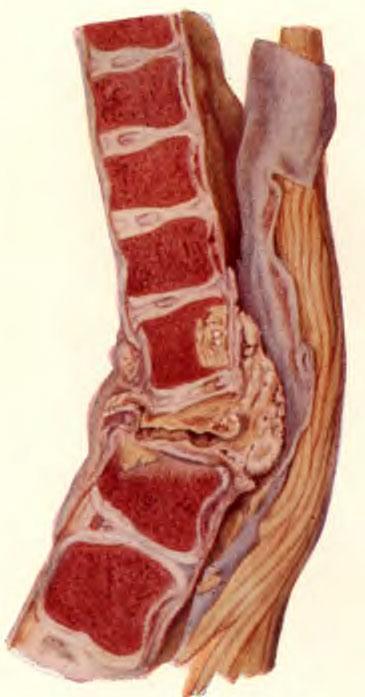 Угловое искривление позвоночника с творожистыми скоплениями в заднем отделе, сдавливающими спинной мозг
