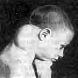 Туберкулез верхних шейных позвонков