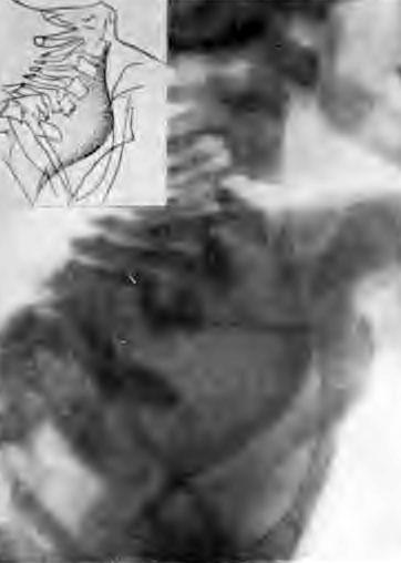 Туберкулез шейно-грудного отдела