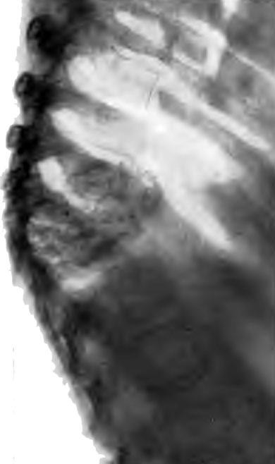 Обызвествленный интраторакальный натечный абсцесс при поражении трех средне грудных позвонков с угловым спадением