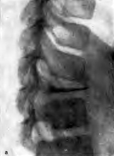 Остеохондроз позвонка (болезнь Кальве). Больная Н., 10 лет (а)