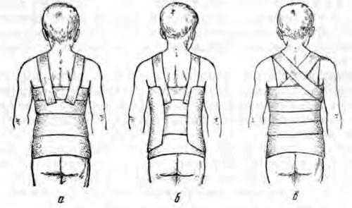 Этапы наложения гипсового корсета