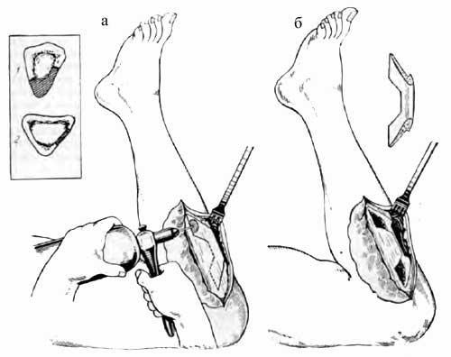 Выкраивание «скобы» из передней внутренней стенки большеберцовой кости с захватом всей толщи гребешка