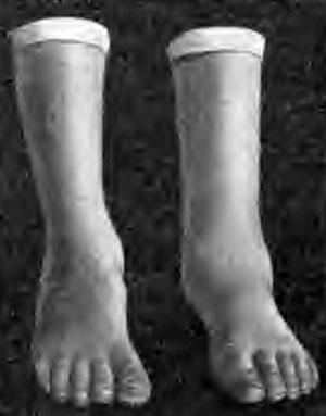 Сглаженность контуров голеностопного сустава (муляж)