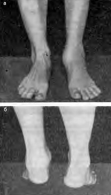 Большая припухлость голеностопного сустава в разгар болезни